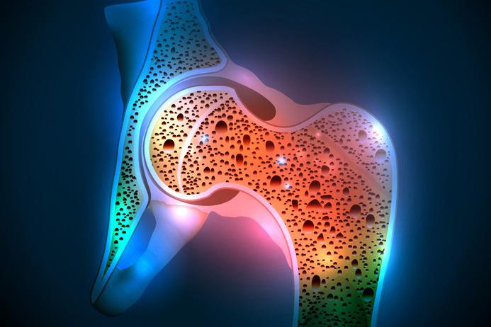 Teil 2: Osteoporose. Und jetzt?