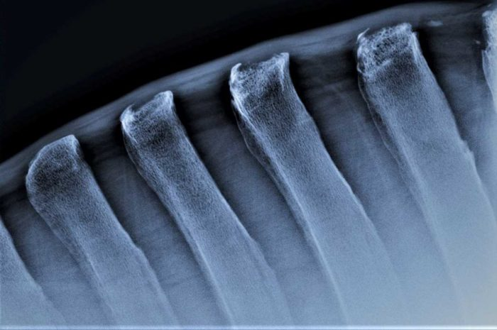 Mit Kissing Spines…